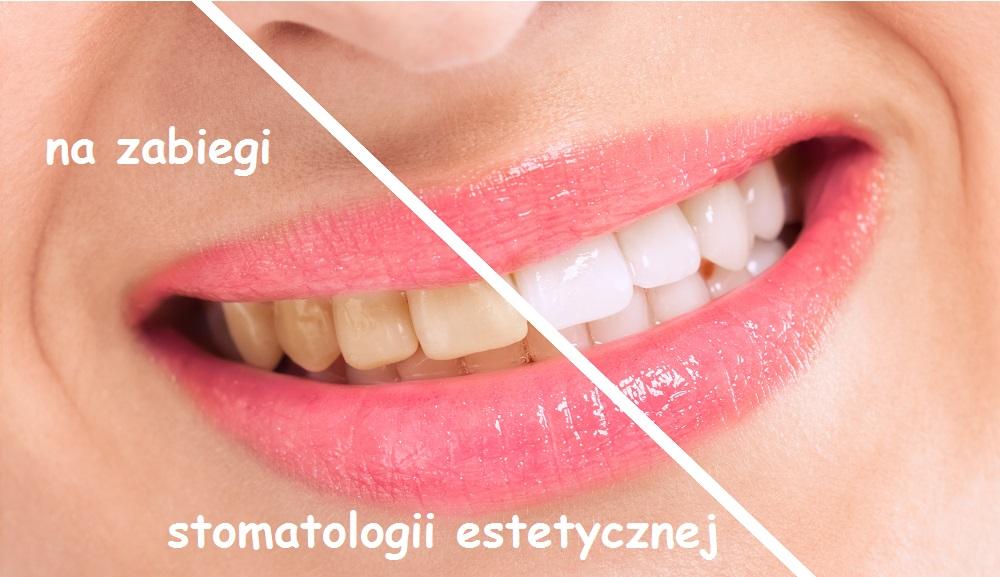 Na zabiegi stomatologii estetycznej
